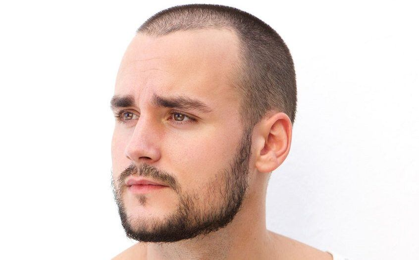 How To Effectively Fix A Patchy Beard Bald Spot