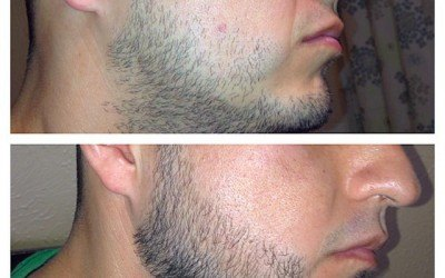 Everything You Need to Know About Rogaine (Minoxidil) on Beards