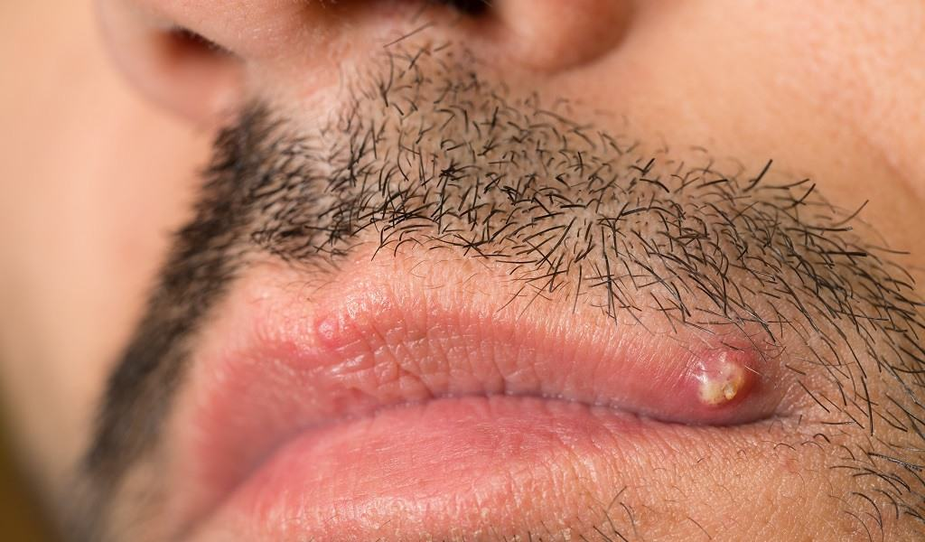 How To Get Rid Of Ingrown Facial Hair (Causes, Prevention