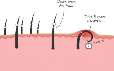 How To Get Rid Of Ingrown Facial Hair (Causes, Prevention, and Removal)