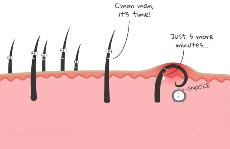 how to get rid of ingrown facial hair causes prevention