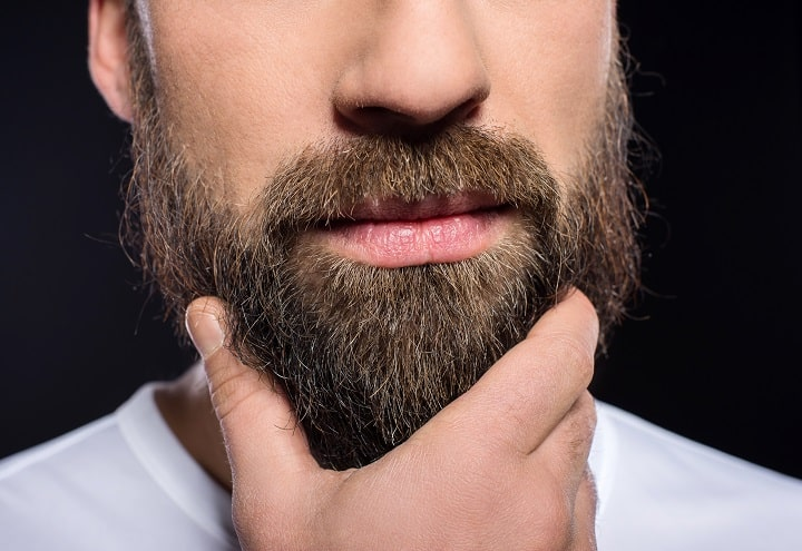Is a Minoxidil beard really permanent