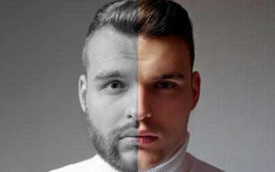 Beard Transplants – Benefits, Cost, Results & Are They for You