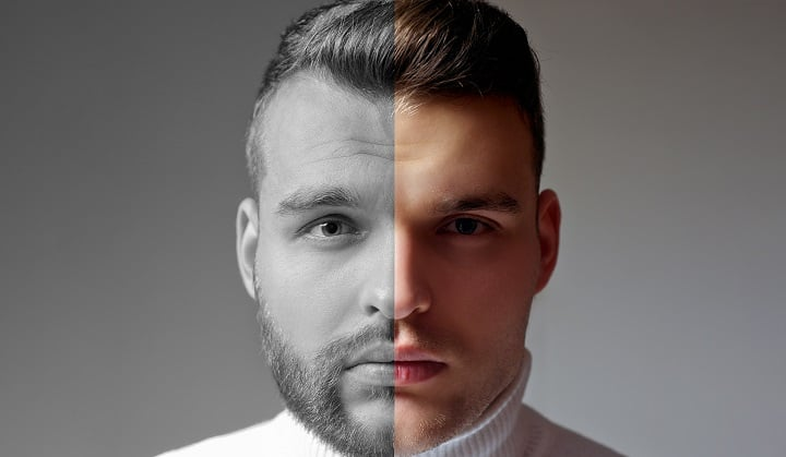 Beard Transplants Benefits Cost Results Are They For You Beardoholic
