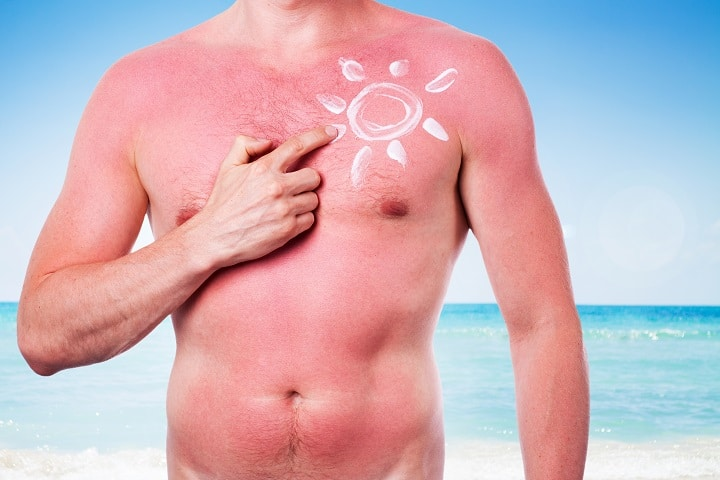 Benefits of Using Men's Sunscreen - Sun Protection