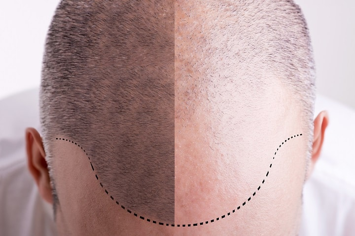 Things to Consider Before Going Bald - Shiny vs Natural