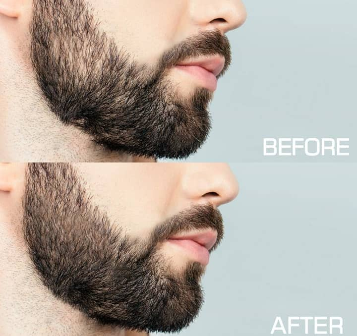 Stages of Using Beard Derma Roller