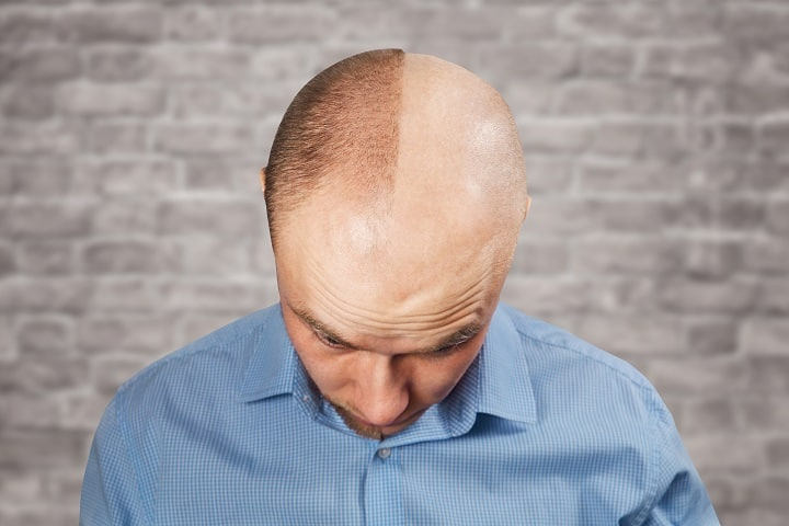Do's and Don'ts With Balding Clippers